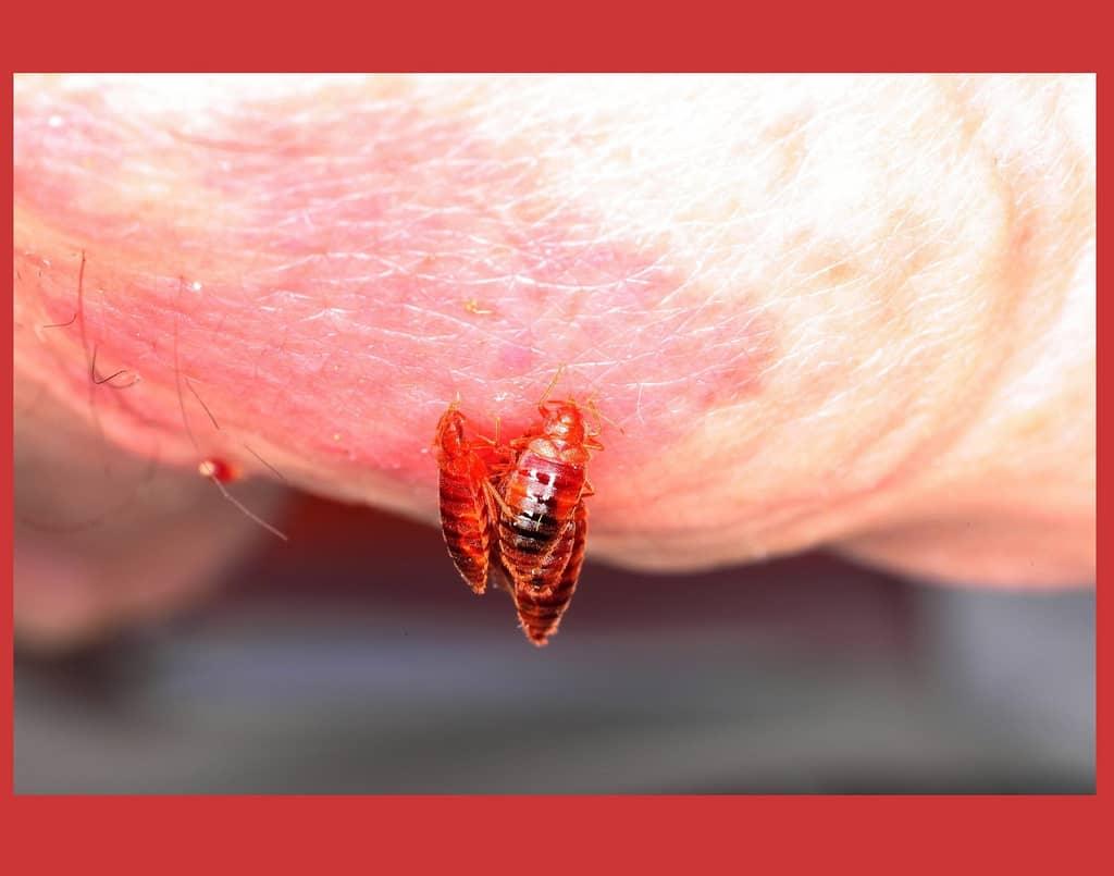 как травить паразитов в организме человека