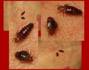 укусы клопов помогут сразу обнаружить насекомых