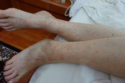 лечение укусов блох