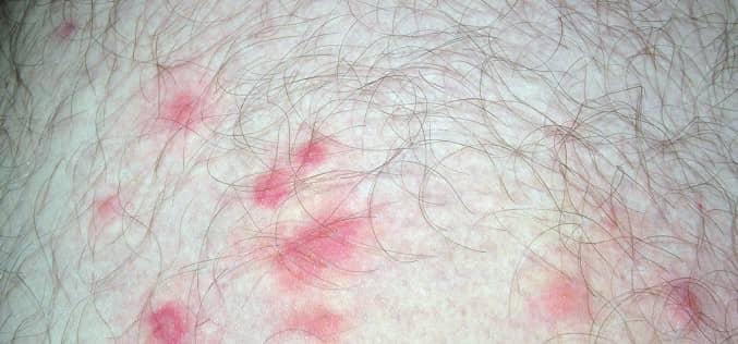 Как обнаружить клопов, если на теле появились следы укусов